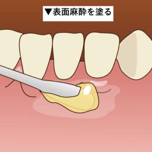 時間 歯医者 麻酔 もう怖くない!?最近の歯科麻酔注射は痛くないって本当?
